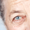 Thumbnail image for Age-Related Macular Degeneration (AMD) in Menopausal Women